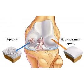 Артроз суставов, как лечить?