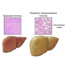 Ожирение печени